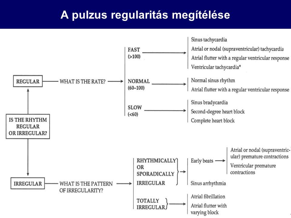 A pulzus regularitás megítélése