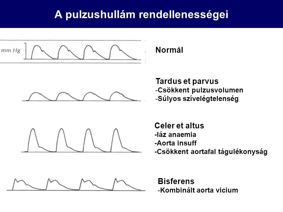A pulzushullám rendellenességei Normál Tardus et parvus -Csökkent pulzusvolumen -Súlyos szívelégtelenség Celer et altus -láz anaemia -Aorta insuff -Cs
