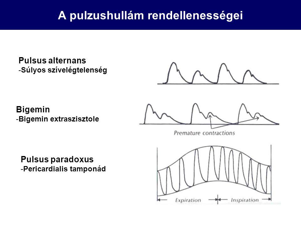 A pulzushullám rendellenességei Pulsus alternans -Súlyos szívelégtelenség Bigemin -Bigemin extraszisztole Pulsus paradoxus -Pericardialis tamponád