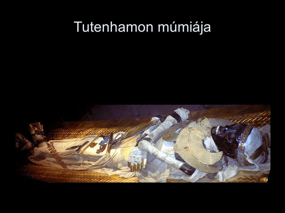Tutenhamon múmiája