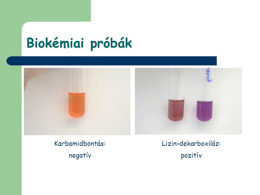 Biokémiai próbák Karbamidbontás: negatív Lizin-dekarboxiláz: pozitív