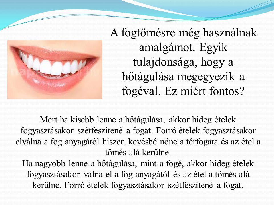 A fogtömésre még használnak amalgámot. Egyik tulajdonsága, hogy a hőtágulása megegyezik a fogéval. Ez miért fontos? Mert ha kisebb lenne a hőtágulása,