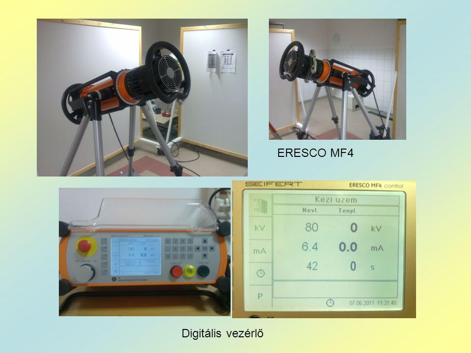 ERESCO MF4 Digitális vezérlő