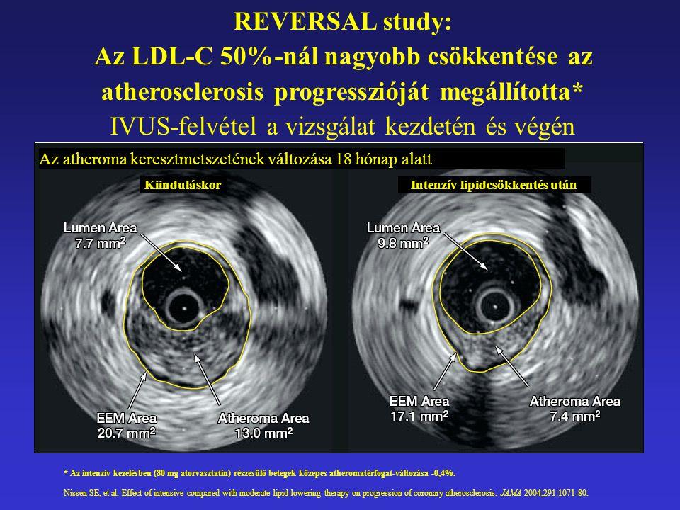 REVERSAL study: Az LDL-C 50%-nál nagyobb csökkentése az atherosclerosis progresszióját megállította* IVUS-felvétel a vizsgálat kezdetén és végén * Az