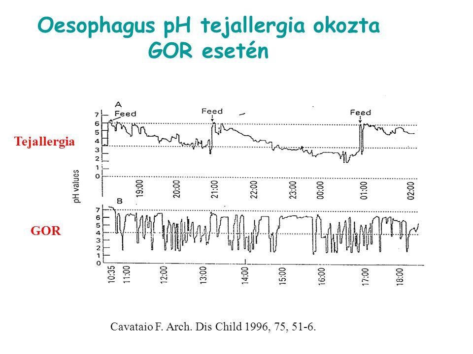 Oesophagus pH tejallergia okozta GOR esetén Cavataio F. Arch. Dis Child 1996, 75, 51-6. Tejallergia GOR