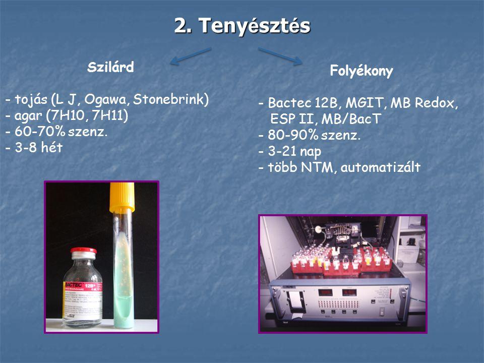 Szilárd - tojás (L J, Ogawa, Stonebrink) - agar (7H10, 7H11) - 60-70% szenz. - 3-8 hét Folyékony - Bactec 12B, MGIT, MB Redox, ESP II, MB/BacT - 80-90