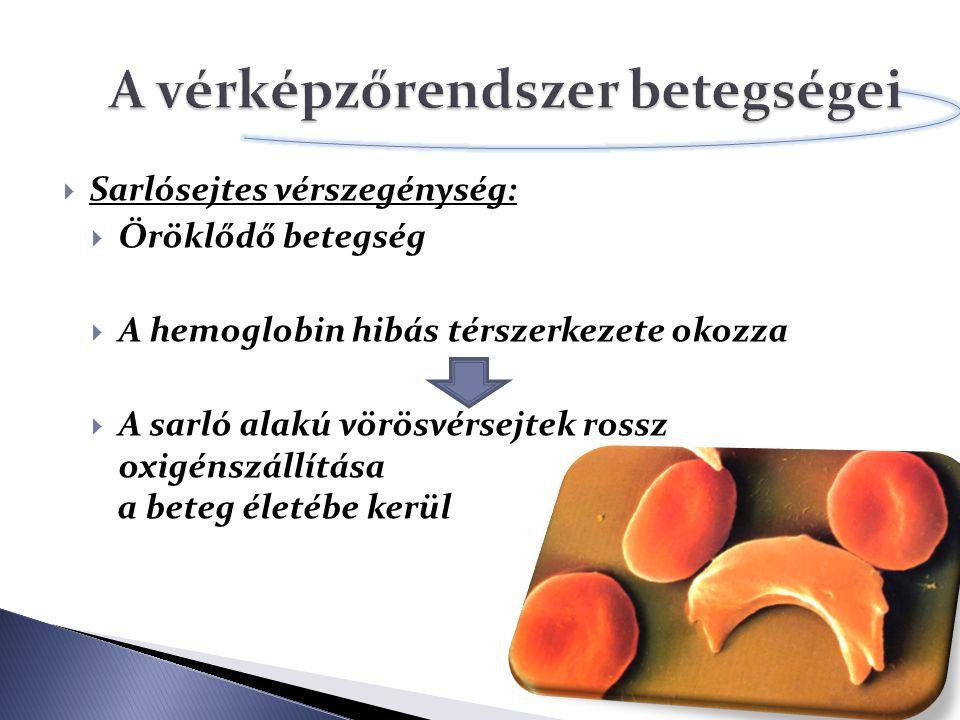  Sarlósejtes vérszegénység:  Öröklődő betegség  A hemoglobin hibás térszerkezete okozza  A sarló alakú vörösvérsejtek rossz oxigénszállítása a bet