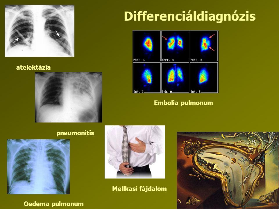 Differenciáldiagnózis atelektázia pneumonitis Embolia pulmonum Oedema pulmonum Mellkasi fájdalom