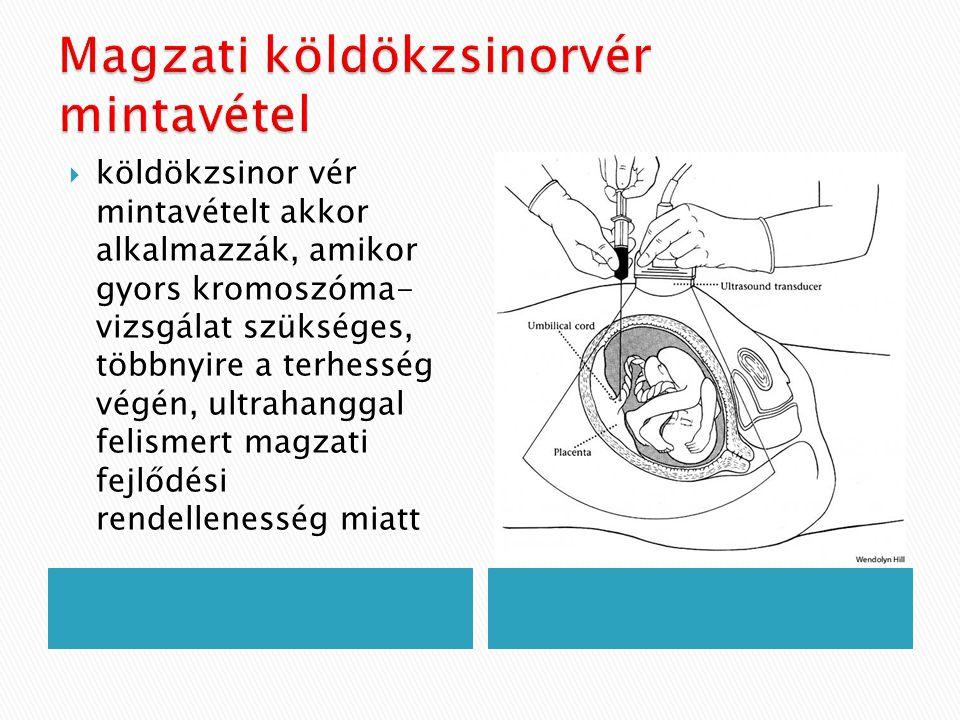  köldökzsinor vér mintavételt akkor alkalmazzák, amikor gyors kromoszóma- vizsgálat szükséges, többnyire a terhesség végén, ultrahanggal felismert ma