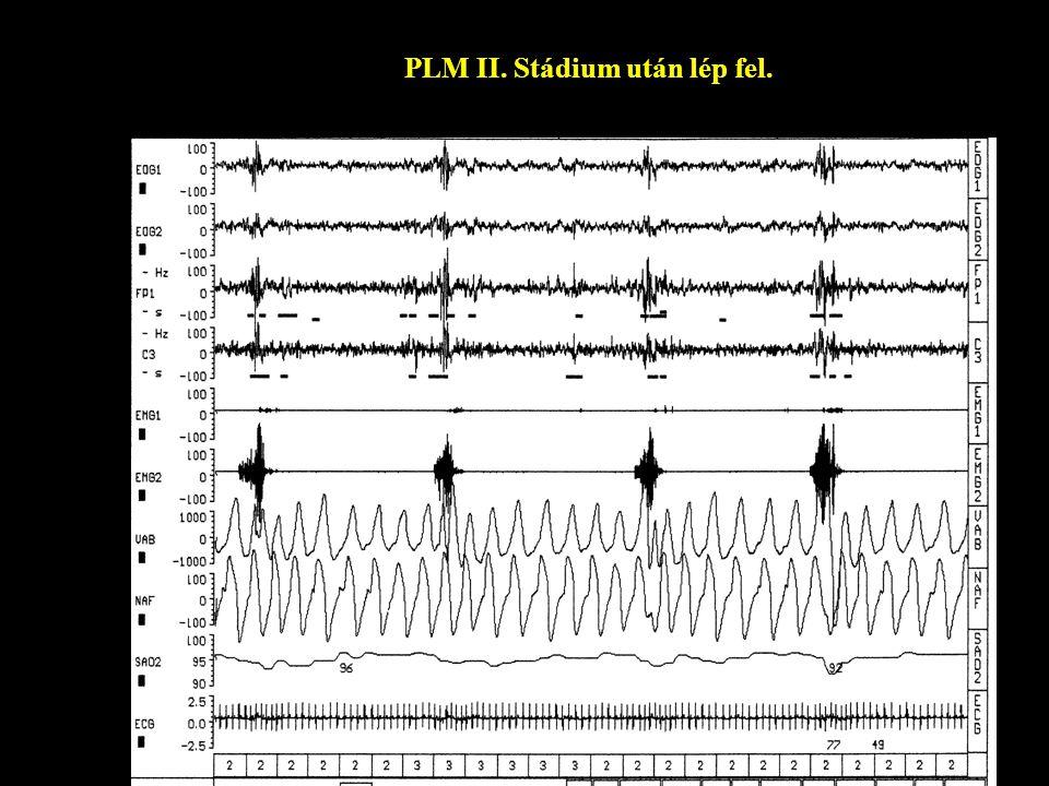 PLM II. Stádium után lép fel.