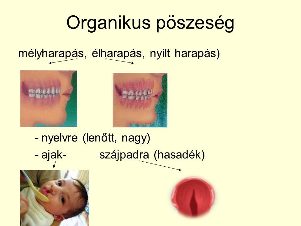 Organikus pöszeség mélyharapás, élharapás, nyílt harapás) - nyelvre (lenőtt, nagy) - ajak- szájpadra (hasadék)