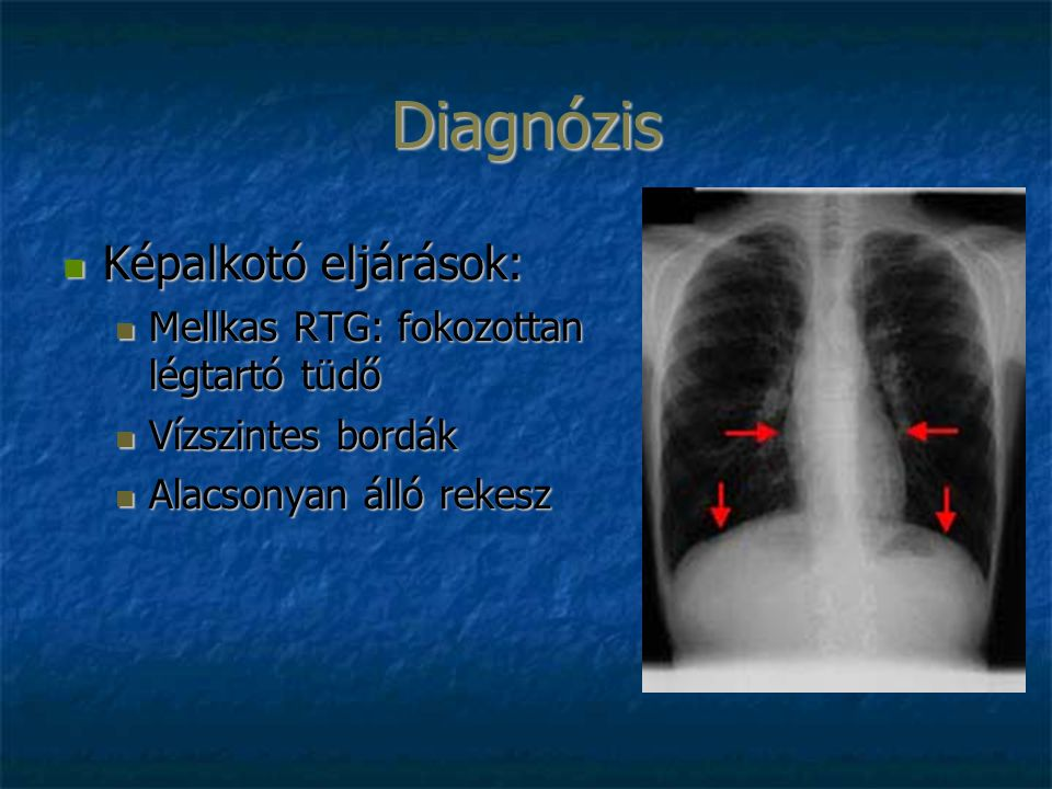 Diagnózis Képalkotó eljárások: Képalkotó eljárások: Mellkas RTG: fokozottan légtartó tüdő Mellkas RTG: fokozottan légtartó tüdő Vízszintes bordák Vízszintes bordák Alacsonyan álló rekesz Alacsonyan álló rekesz