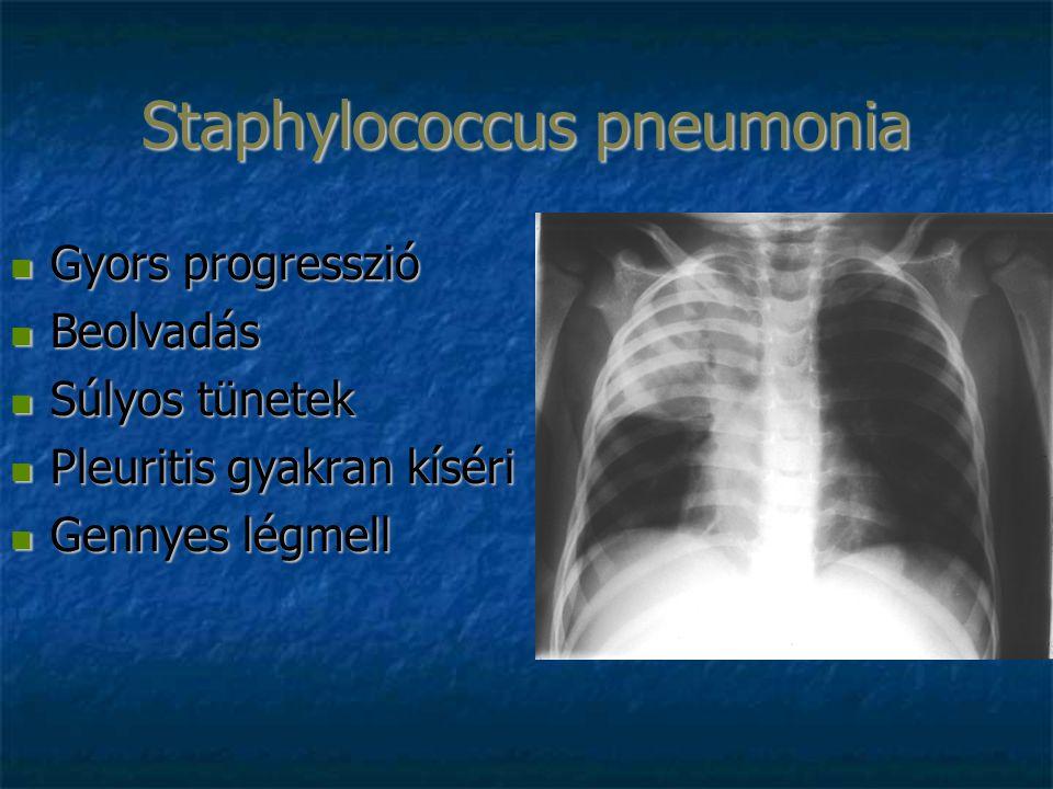 Staphylococcus pneumonia Gyors progresszió Gyors progresszió Beolvadás Beolvadás Súlyos tünetek Súlyos tünetek Pleuritis gyakran kíséri Pleuritis gyakran kíséri Gennyes légmell Gennyes légmell