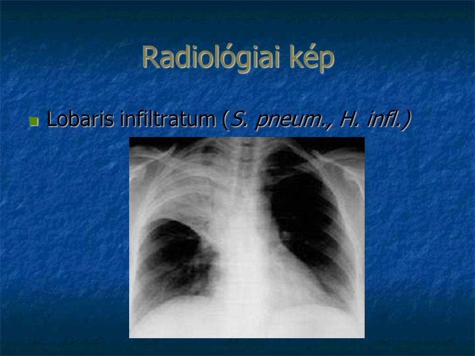 Radiológiai kép Lobaris infiltratum (S. pneum., H. infl.) Lobaris infiltratum (S. pneum., H. infl.)