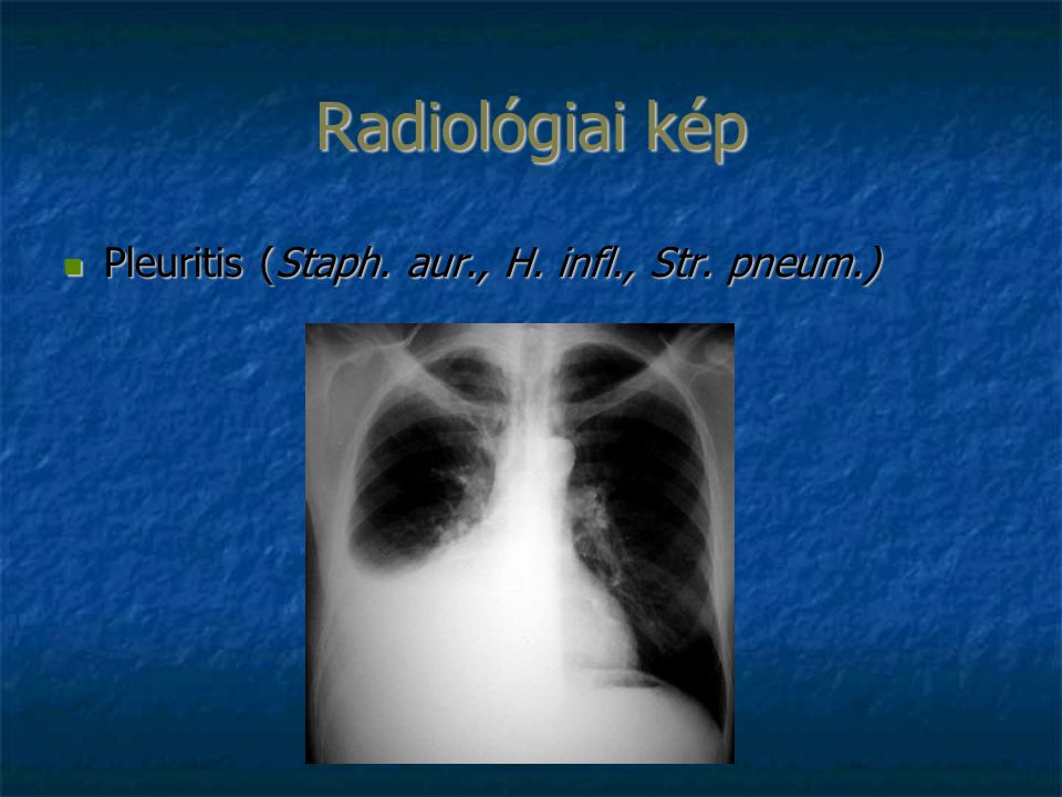 Radiológiai kép Pleuritis (Staph. aur., H. infl., Str. pneum.) Pleuritis (Staph. aur., H. infl., Str. pneum.)