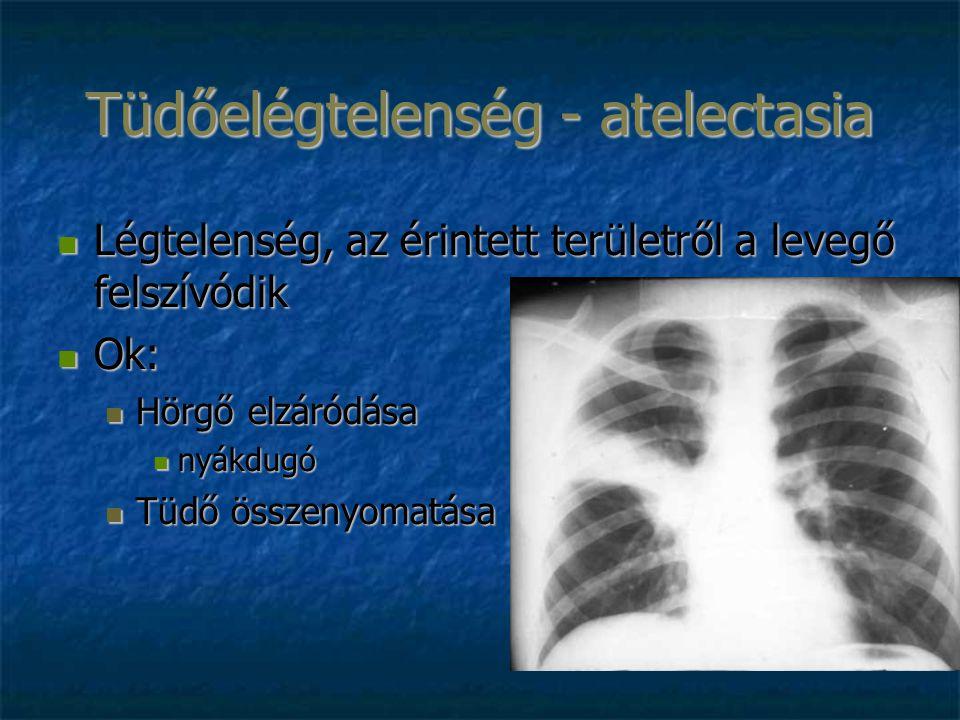 Tüdőelégtelenség - atelectasia Légtelenség, az érintett területről a levegő felszívódik Légtelenség, az érintett területről a levegő felszívódik Ok: Ok: Hörgő elzáródása Hörgő elzáródása nyákdugó nyákdugó Tüdő összenyomatása Tüdő összenyomatása