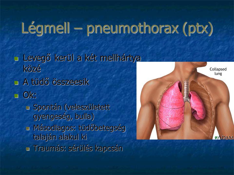 Légmell – pneumothorax (ptx) Levegő kerül a két mellhártya közé Levegő kerül a két mellhártya közé A tüdő összeesik A tüdő összeesik Ok: Ok: Spontán (veleszületett gyengeség, bulla) Spontán (veleszületett gyengeség, bulla) Másodlagos: tüdőbetegség talaján alakul ki Másodlagos: tüdőbetegség talaján alakul ki Traumás: sérülés kapcsán Traumás: sérülés kapcsán