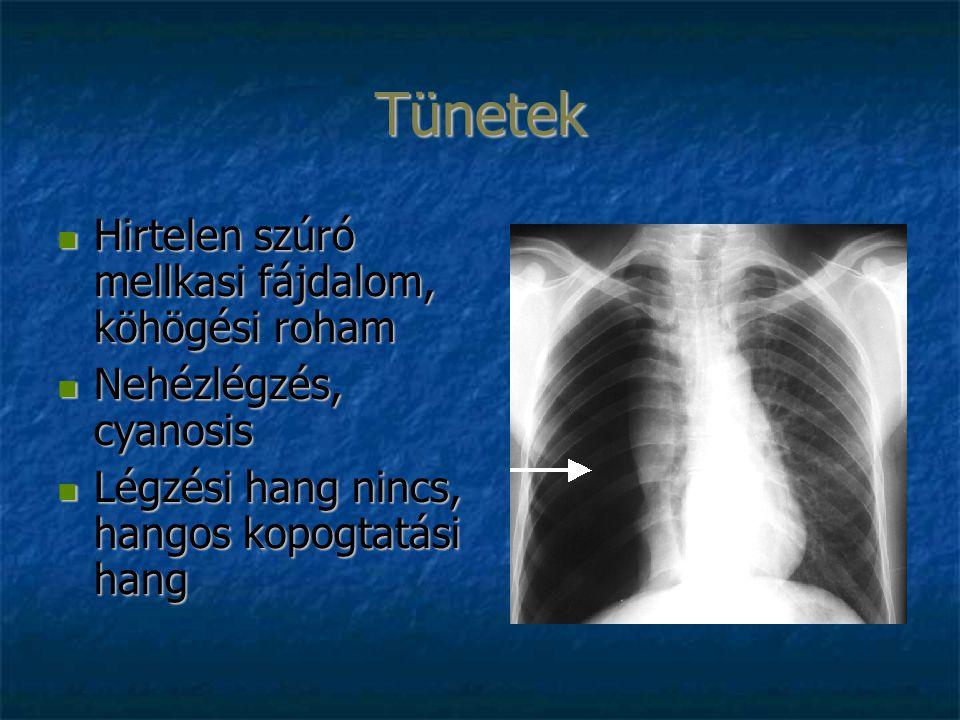 Tünetek Hirtelen szúró mellkasi fájdalom, köhögési roham Hirtelen szúró mellkasi fájdalom, köhögési roham Nehézlégzés, cyanosis Nehézlégzés, cyanosis Légzési hang nincs, hangos kopogtatási hang Légzési hang nincs, hangos kopogtatási hang