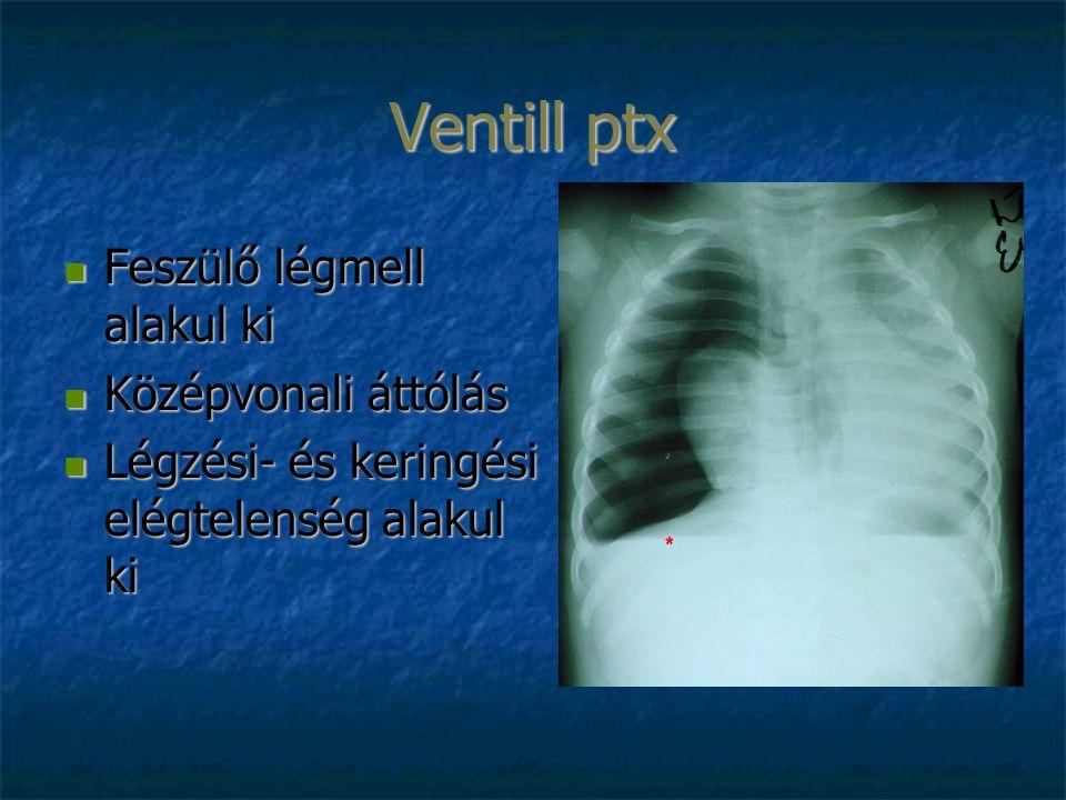 Ventill ptx Feszülő légmell alakul ki Feszülő légmell alakul ki Középvonali áttólás Középvonali áttólás Légzési- és keringési elégtelenség alakul ki L