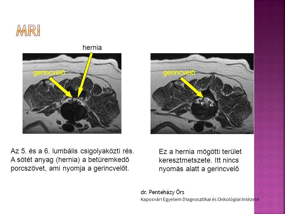 hernia Az 5. és a 6. lumbális csigolyaközti rés. A sötét anyag (hernia) a betüremkedő porcszövet, ami nyomja a gerincvelőt. gerincvelő Ez a hernia mög