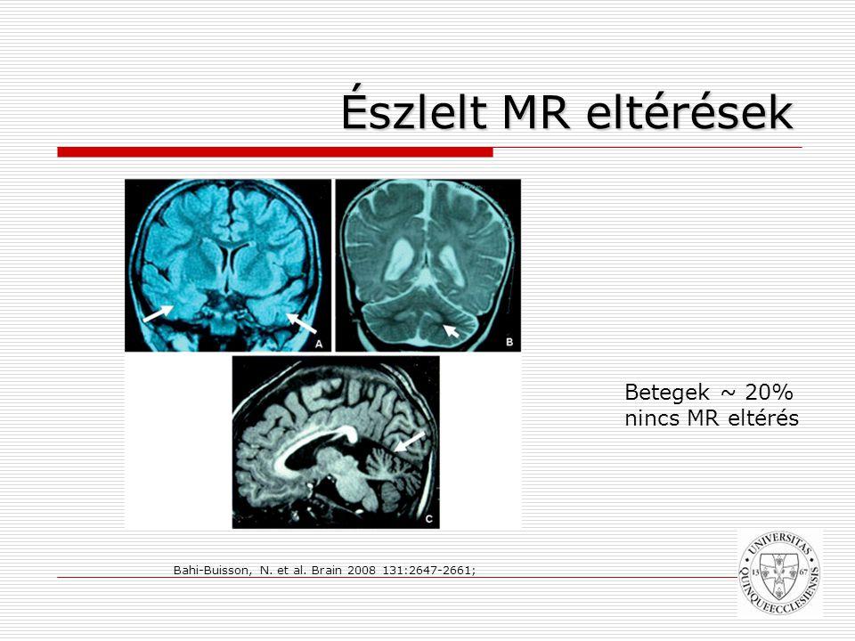 Észlelt MR eltérések Bahi-Buisson, N.et al.