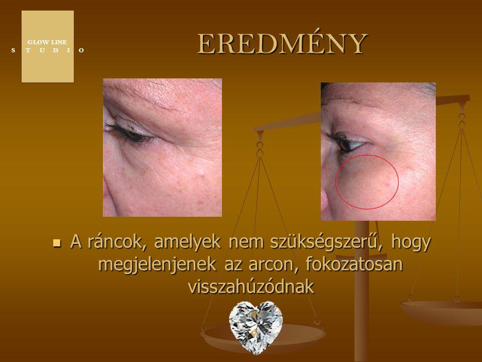 EREDMÉNY A ráncok, amelyek nem szükségszerű, hogy megjelenjenek az arcon, fokozatosan visszahúzódnak GLOW LINE S T U D I O