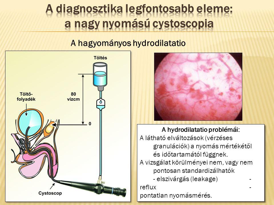 A hagyományos hydrodilatatio A hydrodilatatio problémái: A látható elváltozások (vérzéses granulációk) a nyomás mértékétől és időtartamától függnek. A