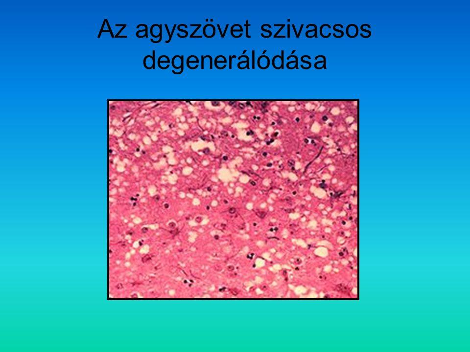 Az agyszövet szivacsos degenerálódása