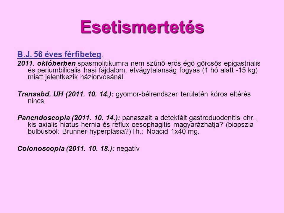 B.J.Kórtörténet III. 2012. 02.22. emésztőrendszeri onkoteam vélemény: vékonybél carcinoid.