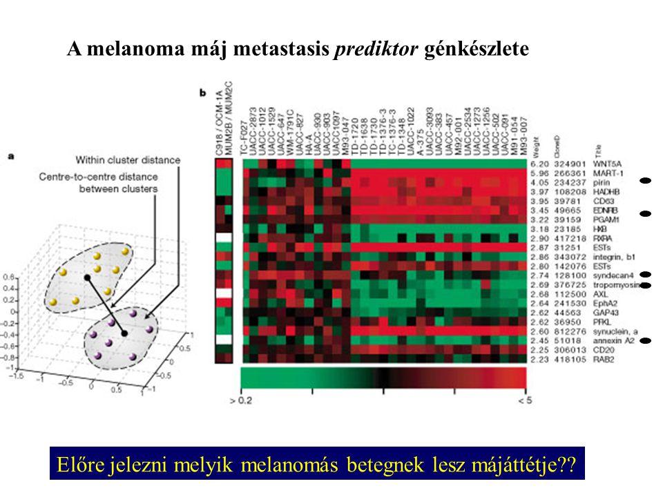 A melanoma máj metastasis prediktor génkészlete Előre jelezni melyik melanomás betegnek lesz májáttétje??