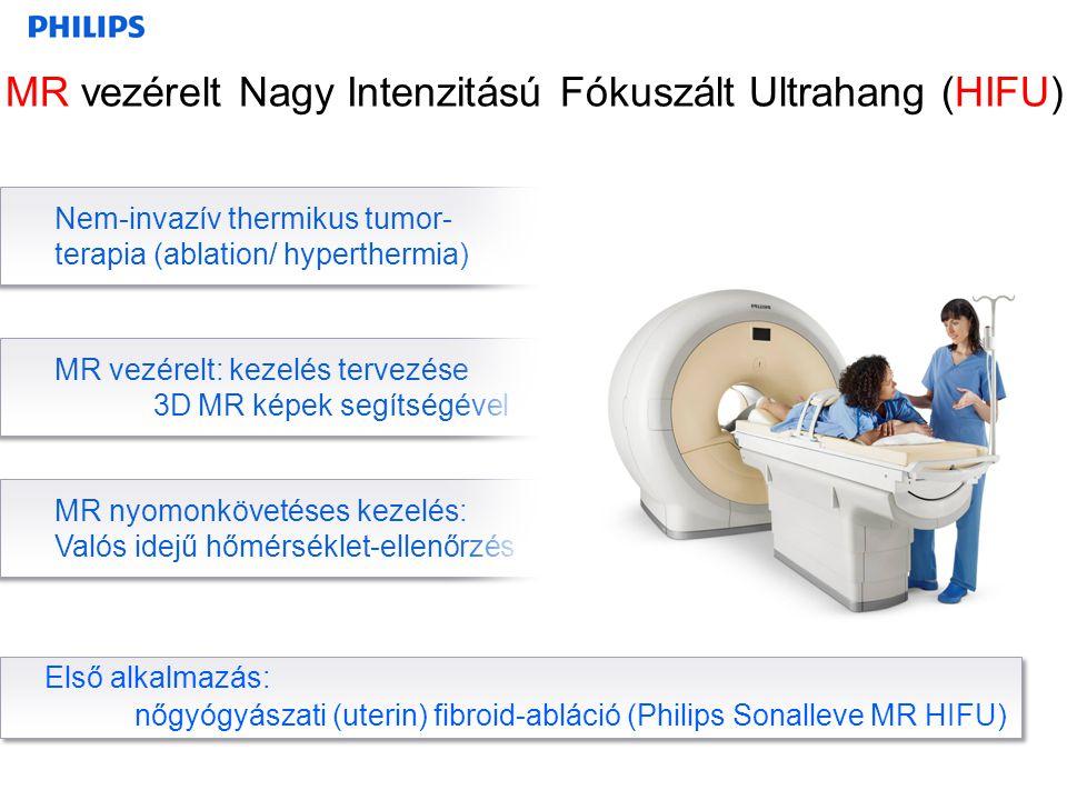 Nem-invazív thermikus tumor- terapia (ablation/ hyperthermia) MR vezérelt: kezelés tervezése 3D MR képek segítségével MR nyomonkövetéses kezelés: Való