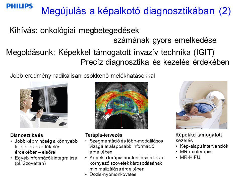Megújulás a képalkotó diagnosztikában (2) Kihívás: onkológiai megbetegedések számának gyors emelkedése Jobb eredmény radikálisan csökkenő melékhatások