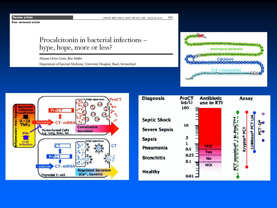 Cigarette smoking accelerates progression of alcoholic chronic pancreatitis P.