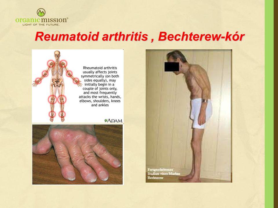 Reumatoid arthritis, Bechterew-kór