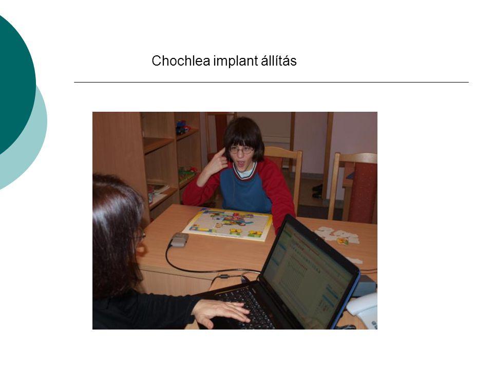 Chochlea implant állítás