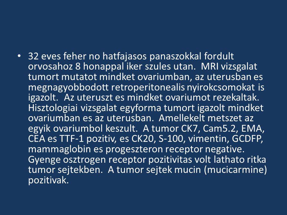 Diagnozis?