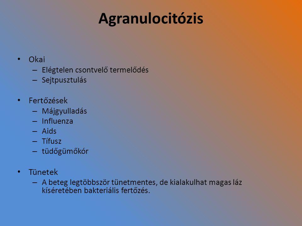 Agranulocitózis Okai – Elégtelen csontvelő termelődés – Sejtpusztulás Fertőzések – Májgyulladás – Influenza – Aids – Tífusz – tüdőgümőkór Tünetek – A