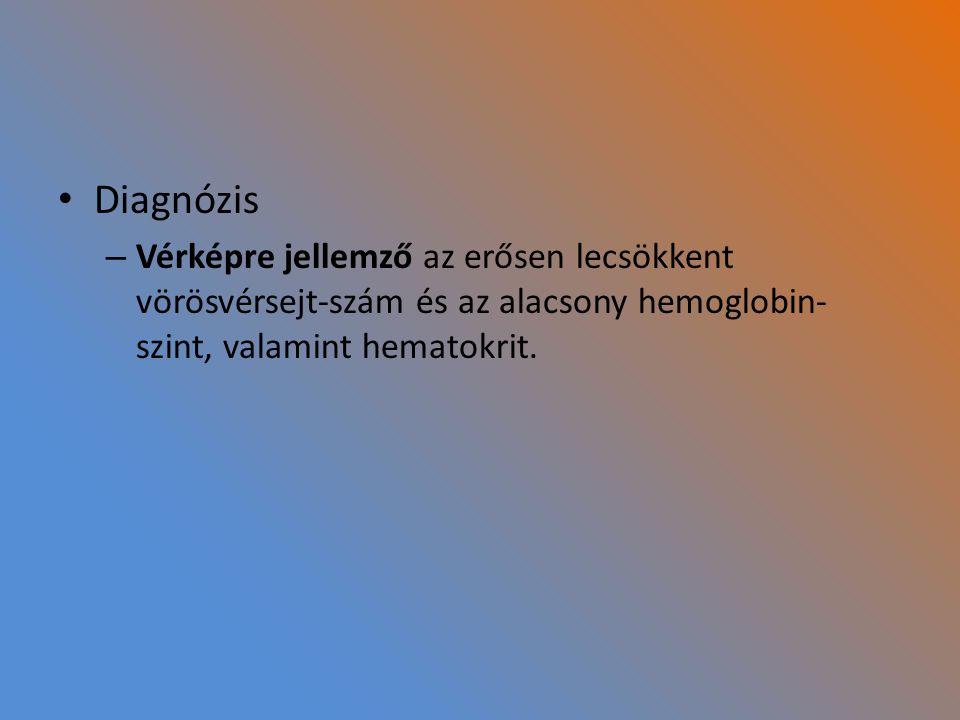 Diagnózis – Vérképre jellemző az erősen lecsökkent vörösvérsejt-szám és az alacsony hemoglobin- szint, valamint hematokrit.