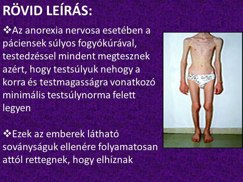 RÖVID LEÍRÁS:  Az anorexia nervosa esetében a páciensek súlyos fogyókúrával, testedzéssel mindent megtesznek azért, hogy testsúlyuk nehogy a korra és