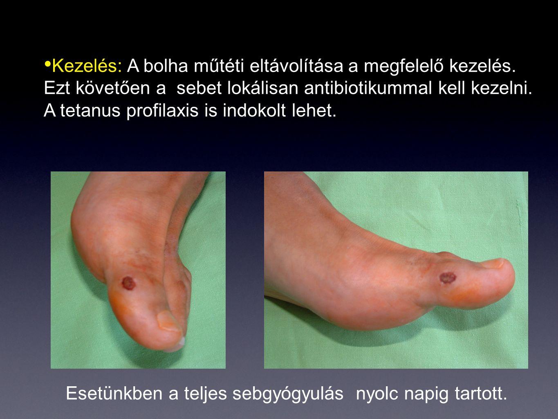 Kezelés: A bolha műtéti eltávolítása a megfelelő kezelés. Ezt követően a sebet lokálisan antibiotikummal kell kezelni. A tetanus profilaxis is indokol