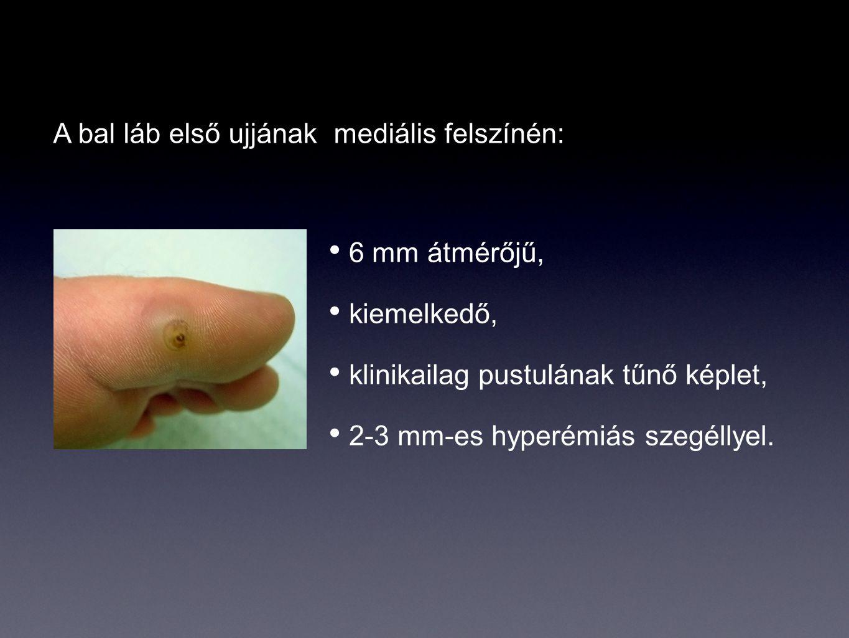 6 mm átmérőjű, kiemelkedő, klinikailag pustulának tűnő képlet, 2-3 mm-es hyperémiás szegéllyel. A bal láb első ujjának mediális felszínén: