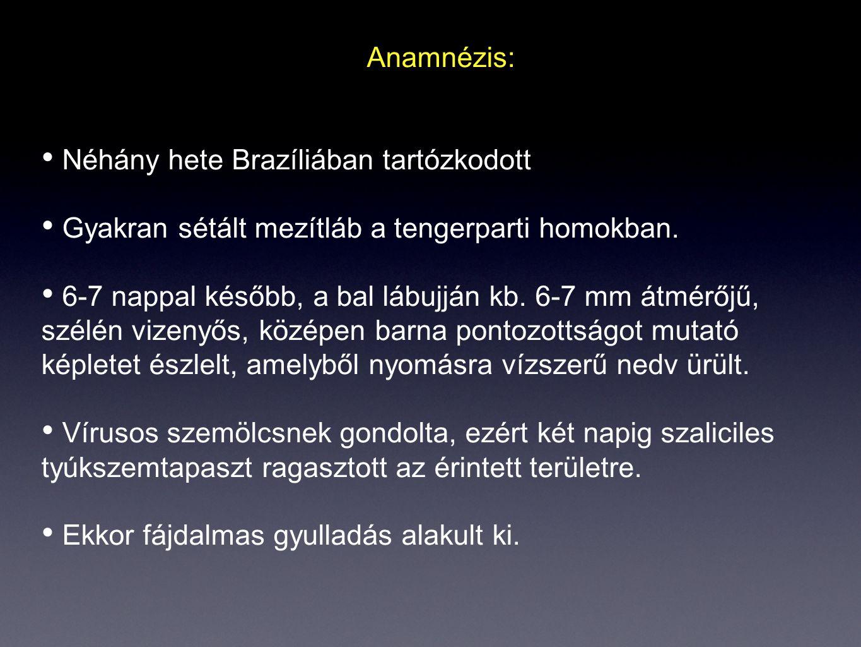 Anamnézis: Néhány hete Brazíliában tartózkodott Gyakran sétált mezítláb a tengerparti homokban. 6-7 nappal később, a bal lábujján kb. 6-7 mm átmérőjű,