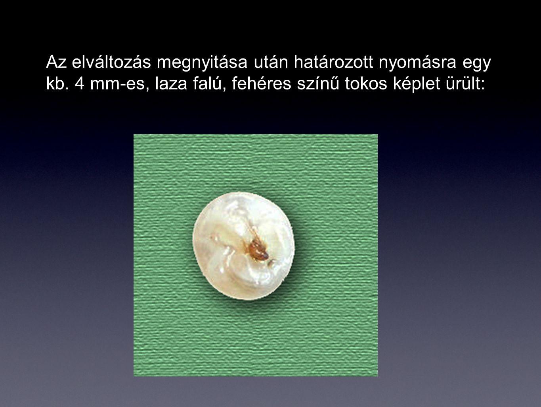 A képletet az OEK Parazitológiai Osztályára küldtük vizsgálatra.