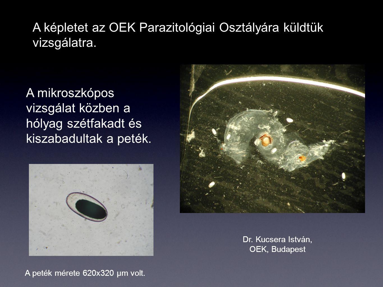 A képletet az OEK Parazitológiai Osztályára küldtük vizsgálatra. A mikroszkópos vizsgálat közben a hólyag szétfakadt és kiszabadultak a peték. A peték