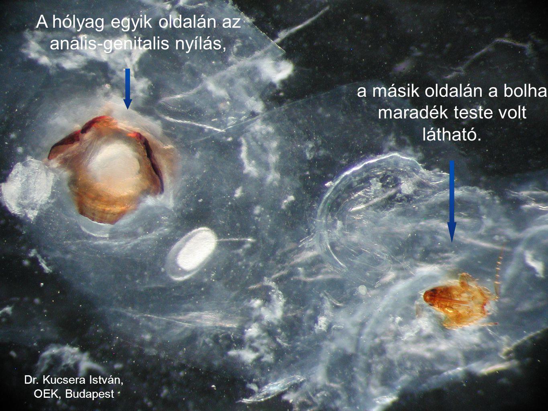A hólyag egyik oldalán az analis-genitalis nyílás, a másik oldalán a bolha maradék teste volt látható. Dr. Kucsera István, OEK, Budapest