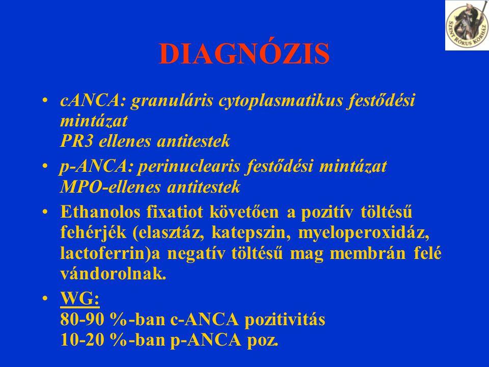 DIAGNÓZIS cANCA: granuláris cytoplasmatikus festődési mintázat PR3 ellenes antitestek p-ANCA: perinuclearis festődési mintázat MPO-ellenes antitestek Ethanolos fixatiot követően a pozitív töltésű fehérjék (elasztáz, katepszin, myeloperoxidáz, lactoferrin)a negatív töltésű mag membrán felé vándorolnak.
