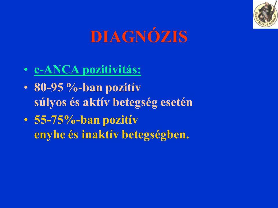 DIAGNÓZIS c-ANCA pozitivitás: 80-95 %-ban pozitív súlyos és aktív betegség esetén 55-75%-ban pozitív enyhe és inaktív betegségben.