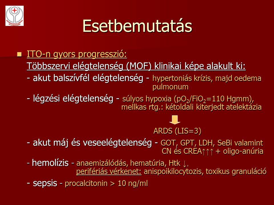 Esetbemutatás ITO-n gyors progresszió: ITO-n gyors progresszió: Többszervi elégtelenség (MOF) klinikai képe alakult ki: - akut balszívfél elégtelenség