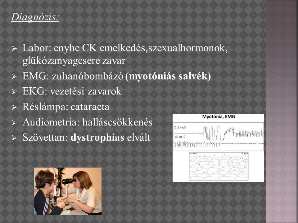 Diagnózis:  Labor: enyhe CK emelkedés,szexualhormonok, glükózanyagcsere zavar  EMG: zuhanóbombázó (myotóniás salvék)  EKG: vezetési zavarok  Réslá