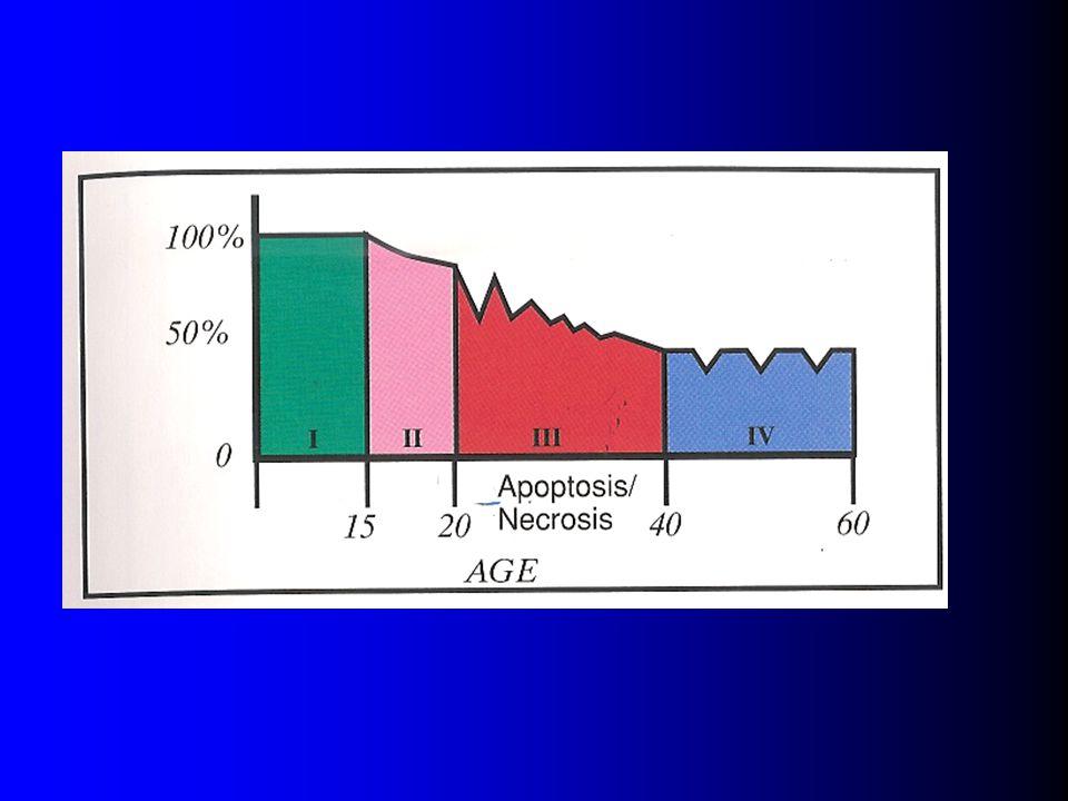 A szkizofrénia, mint neurodegeneratív kórkép 1. Premorbid szak 2. Prodroma 3. Kaotikus szindrómák 4. Reziduális pozitív és negatív tünetek  Apoptózis